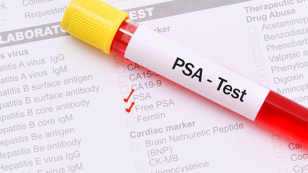 prueba de cáncer de próstata bbc